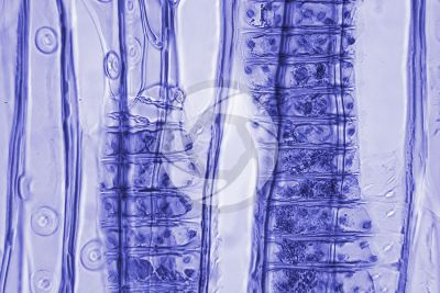 Larix decidua. European larch. Stem. Radial longitudinal section. Contrasting colour. 500X