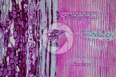 Pinus sp. Pino. Fusto. Sezione longitudinale radiale. 125X