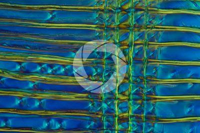 Pinus sylvestris. Pino silvestre. Fusto. Sezione longitudinale radiale. Contrasto interferenziale. 500X
