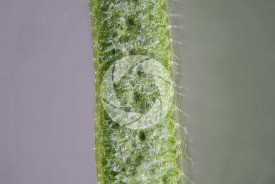 Araucaria araucana. Foglia. Sezione trasversale. 30X