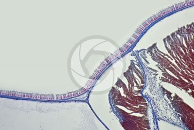 Branchiostoma sp. Lancet. Skin and epidermis. Transverse section. 250X