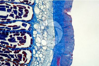 Petromyzon sp. Lamprey. Skin and epidermis. Transverse section. 100X