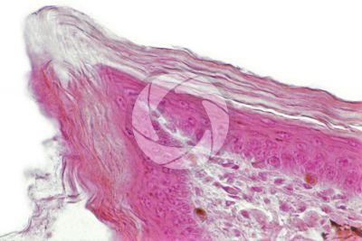 Testudines. Turtle. Leg. Skin and epidermis. Vertical section. 250X