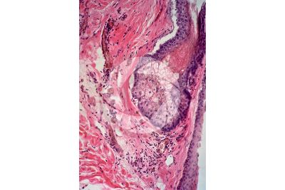 Man. Sebaceous gland. Vertical section. 250X