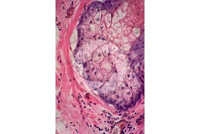 Man. Sebaceous gland. Vertical section. 500X