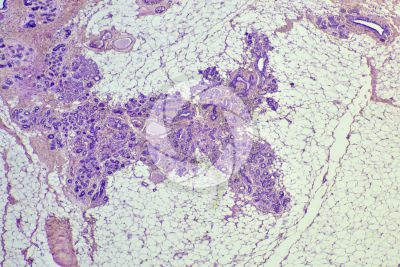 Woman. Inactive mammary gland. Vertical section. 32X