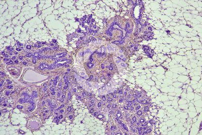 Woman. Inactive mammary gland. Vertical section. 64X