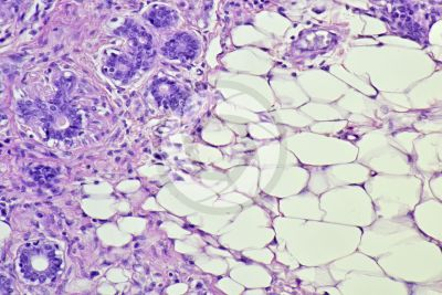 Woman. Inactive mammary gland. Vertical section. 250X