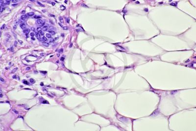 Woman. Inactive mammary gland. Vertical section. 500X