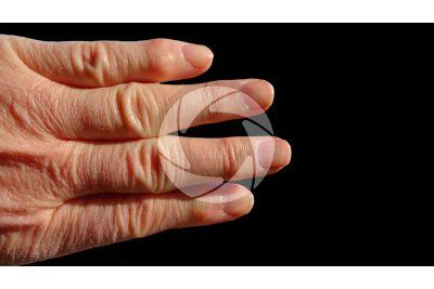 Skin appendage. Man. Nail