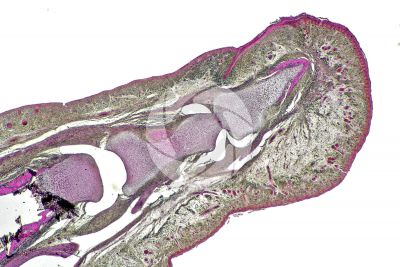 Man. Embryo. Distal and intermediate phalange. Longitudinal section. 32X