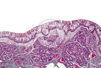 Uomo. Mucosa nasale. Sezione verticale. 100X