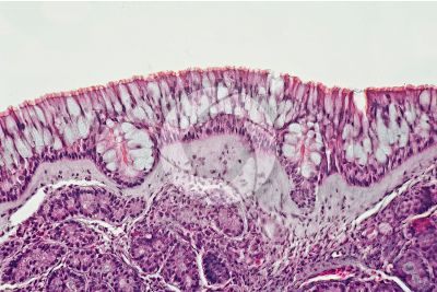 Man. Nasal mucous membrane. Vertical section. 250X