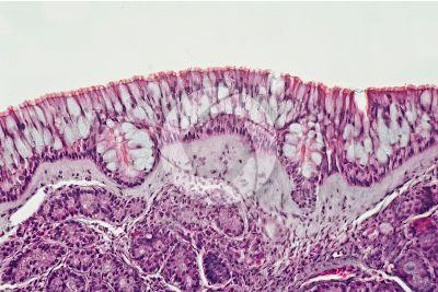 Uomo. Mucosa nasale. Sezione verticale. 250X