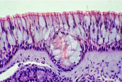 Uomo. Mucosa nasale. Sezione verticale. 500X