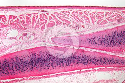 Uomo. Trachea. Sezione verticale. 64X