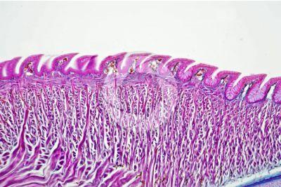 Lacerta sp. Lucertola. Lingua. Sezione longitudinale. 125X