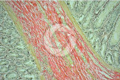 Dog. Small intestine. Transverse section. 125X