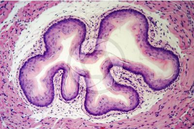 Rat. Esophagus. Transverse section. 250X
