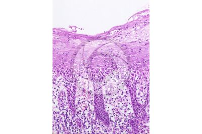 Man. Inside of the cheek. Vertical section. 125X