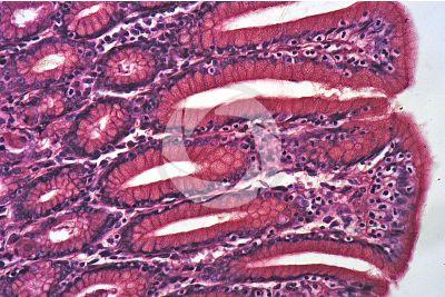 Man. Stomach. Transverse section. 250X