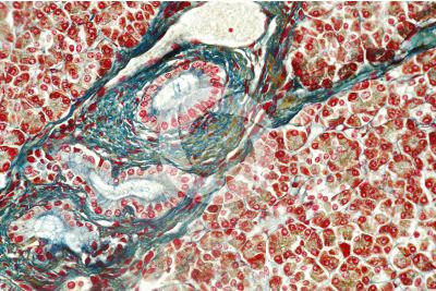 Man. Pancreas. Transverse section. 250X