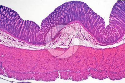 Mammal. Large intestine. Transverse section. 32X