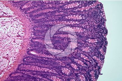 Mammal. Large intestine. Transverse section. 125X