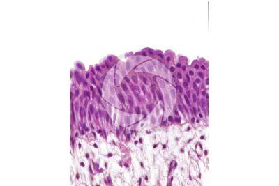 Man. Ureter. Transverse section. 250X