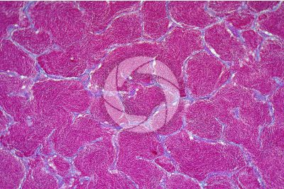 Cyprinus sp. Testicle. Transverse section. 125X
