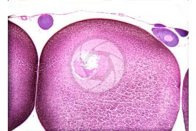 Rana sp. Frog. Mature ovary. Transverse section. 125X