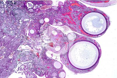 Gallus gallus domesticus. Chicken. Ovary. Transverse section. 32X