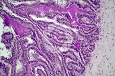 Cavia sp. Guinea pig. Testicle. Seminal vesicle. Transverse section. 250X
