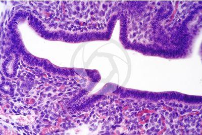 Rat. Uterus. Transverse section. 125X