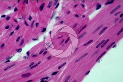 Rana sp. Frog. Cardiac muscle. Transverse section. 500X