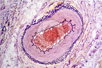 Mammal. Artery. Orcein. Transverse section. 125X