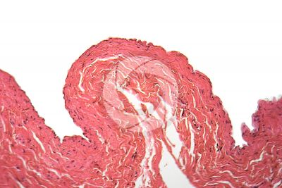 Mammal. Vein. Transverse section. 125X
