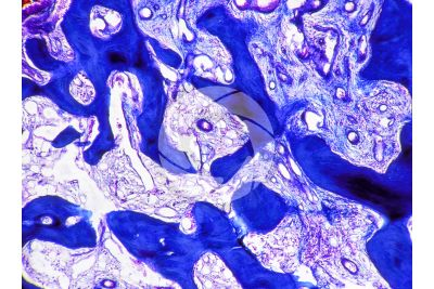 Mammal. Spongy osseous tissue. Femur. Transverse section. 125X