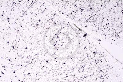 Mammal. Cerebral cortex. Neuron. Silver stain. 64X