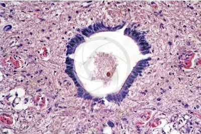 Mammifero. Midollo spinale. Sezione trasversale. 250X