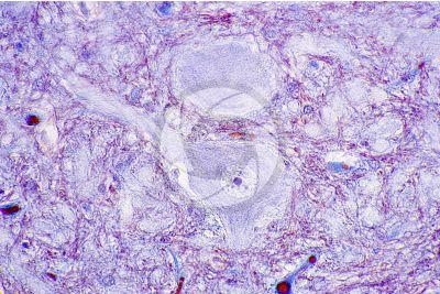 Mammifero. Midollo spinale. Sezione trasversale. 500X