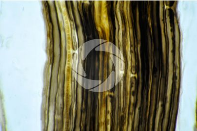 Mammal. Nerve. Osmium tetroxide stain. Longitudinal section. 500X
