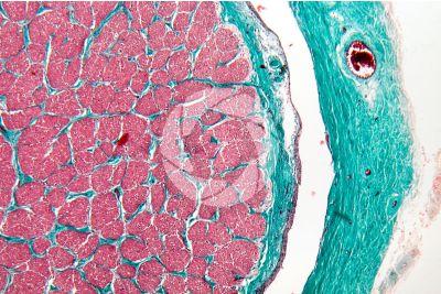 Mammal. Optic nerve. Transverse section. 64X