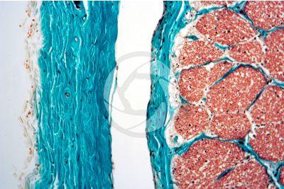 Mammal. Optic nerve. Transverse section. 125X