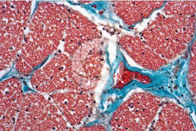 Mammal. Optic nerve. Transverse section. 250X