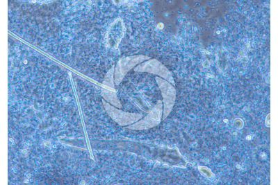 Demodex folliculorum. Demodectic mange. 100X