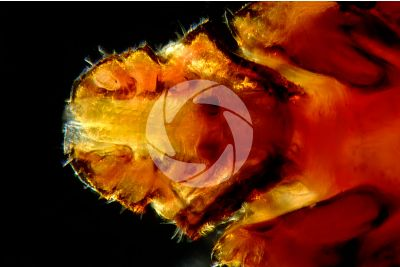 Ixodes ricinus. Castor bean tick. Ventral view. 50X