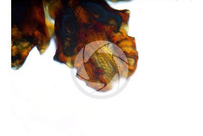 Ixodes ricinus. Zecca dei boschi. Vista ventrale. 50X