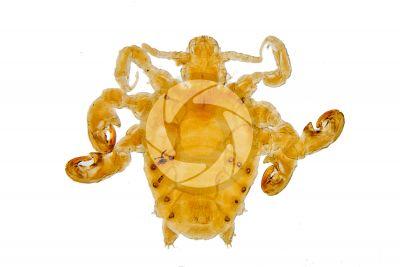 Pthirus pubis. Crab louse. Pediculosis pubis. Dorsal view