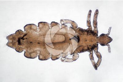 Pediculus humanus capitis. Head louse. Pediculosis. Dorsal view